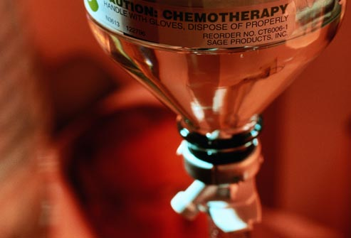 getty_rm_photo_of_chemotherapy_iv